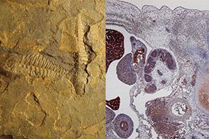 1075 Lundensaren fossil tumor